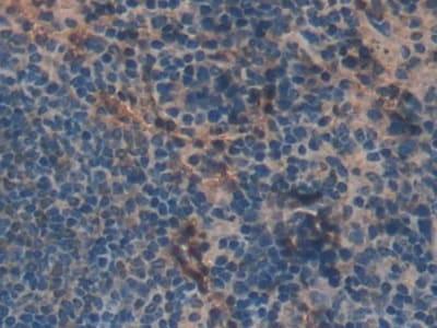 Immunohistochemistry (Formalin/PFA-fixed paraffin-embedded sections) - Anti-Skeletrophin / Mib2 antibody (ab233068)