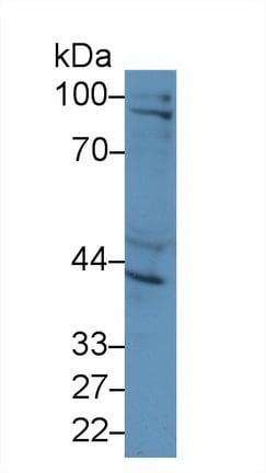 Western blot - Anti-Inhibin beta A antibody (ab233083)