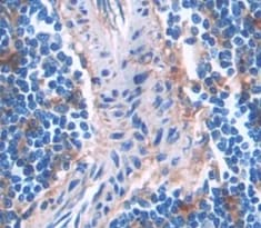 Immunohistochemistry (Formalin/PFA-fixed paraffin-embedded sections) - Anti-LAT2 antibody (ab233088)
