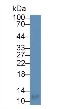Western blot - Anti-CCL18 antibody (ab233099)