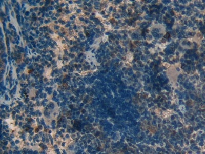 Immunohistochemistry (Formalin/PFA-fixed paraffin-embedded sections) - Anti-MT-ND5 antibody (ab233100)