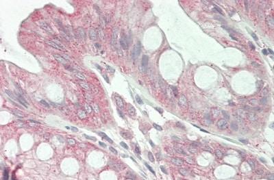 Immunohistochemistry (Formalin/PFA-fixed paraffin-embedded sections) - Anti-Jagged1 antibody (ab233101)