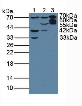 Western blot - Anti-T Plastin/PLS3 antibody (ab233104)