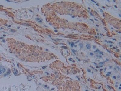 Immunohistochemistry (Formalin/PFA-fixed paraffin-embedded sections) - Anti-T Plastin/PLS3 antibody (ab233104)