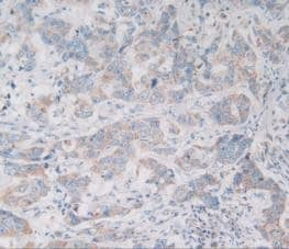 Immunohistochemistry (Formalin/PFA-fixed paraffin-embedded sections) - Anti-VNN1/Vanin-1 antibody (ab233105)