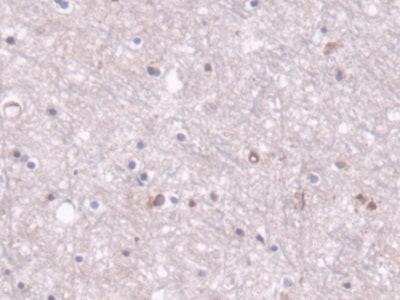 Immunohistochemistry (Formalin/PFA-fixed paraffin-embedded sections) - Anti-PCB antibody (ab233106)