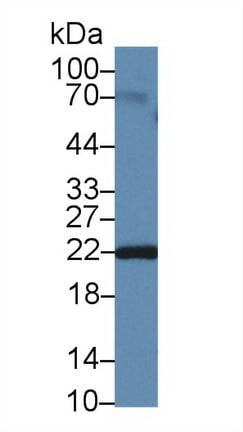 Western blot - Anti-Neurotensin antibody (ab233107)