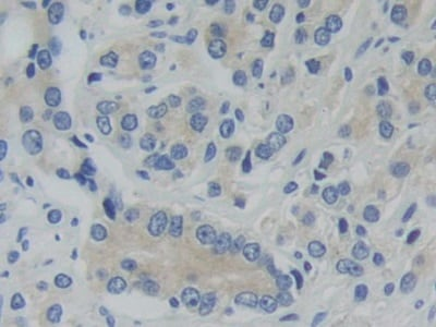 Immunohistochemistry (Formalin/PFA-fixed paraffin-embedded sections) - Anti-PFKP antibody (ab233109)