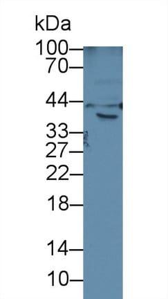 Western blot - Anti-Hemojuvelin antibody (ab233110)
