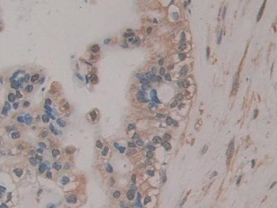 Immunohistochemistry (Formalin/PFA-fixed paraffin-embedded sections) - Anti-RSPO3 antibody (ab233113)