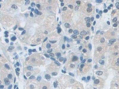 Immunohistochemistry (Formalin/PFA-fixed paraffin-embedded sections) - Anti-SNRPD1 antibody (ab233115)