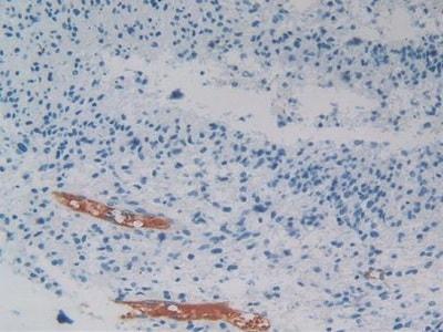 Immunohistochemistry (Formalin/PFA-fixed paraffin-embedded sections) - Anti-PEDF antibody (ab233120)