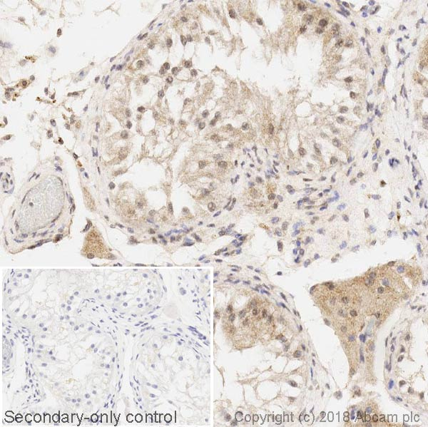 Immunohistochemistry (Formalin/PFA-fixed paraffin-embedded sections) - Anti-DDIT3 antibody [9C8] - BSA and Azide free (ab233121)