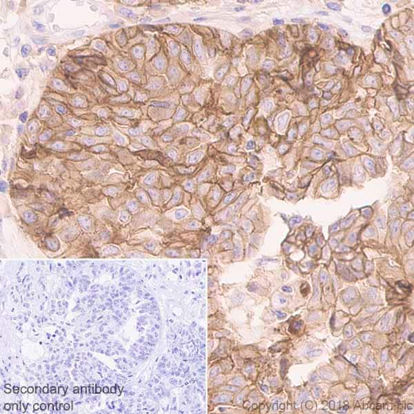 Immunohistochemistry (Formalin/PFA-fixed paraffin-embedded sections) - Anti-CD47 antibody [EPR21794] - BSA and Azide free (ab233122)