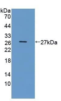 Western blot - Anti-DOPA Decarboxylase/DDC antibody (ab233132)
