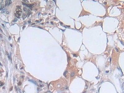 Immunohistochemistry (Formalin/PFA-fixed paraffin-embedded sections) - Anti-PGK1 antibody (ab233135)