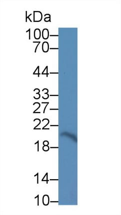 Western blot - Anti-CNPY2/MSAP antibody (ab233136)