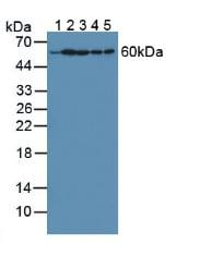 Western blot - Anti-HPRT antibody (ab233137)