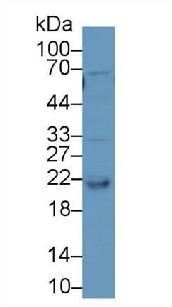 Western blot - Anti-RBP4 antibody (ab233138)