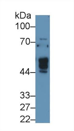 Western blot - Anti-NAGA antibody (ab233140)