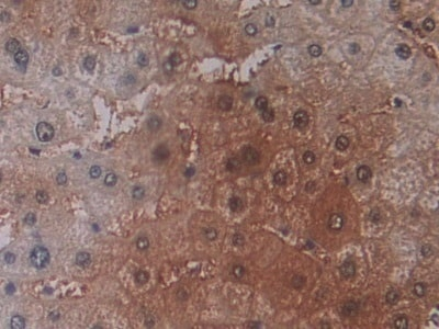 Immunohistochemistry (Formalin/PFA-fixed paraffin-embedded sections) - Anti-RKIP antibody (ab233144)