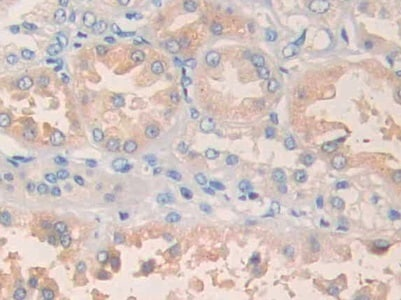 Immunohistochemistry (Formalin/PFA-fixed paraffin-embedded sections) - Anti-PLA1A/NMD antibody (ab233145)