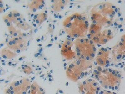 Immunohistochemistry (Formalin/PFA-fixed paraffin-embedded sections) - Anti-GDI1 antibody (ab233149)