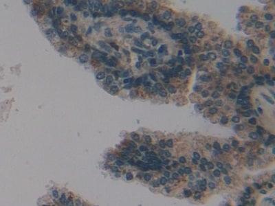 Immunohistochemistry (Formalin/PFA-fixed paraffin-embedded sections) - Anti-PSMD9 antibody (ab233154)