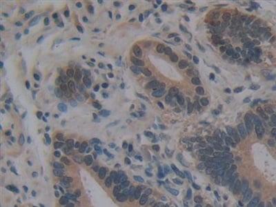 Immunohistochemistry (Formalin/PFA-fixed paraffin-embedded sections) - Anti-Villin antibody (ab233155)