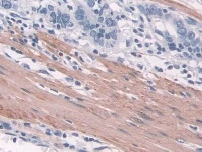 Immunohistochemistry (Formalin/PFA-fixed paraffin-embedded sections) - Anti-TAGLN/Transgelin antibody (ab233158)