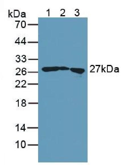 Western blot - Anti-TAGLN/Transgelin antibody (ab233158)