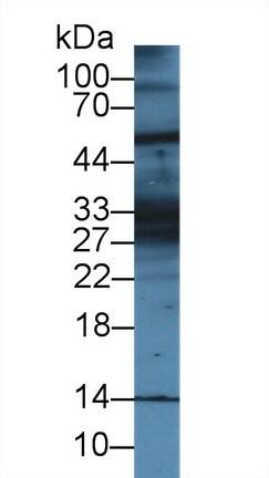 Western blot - Anti-K28 antibody (ab233161)