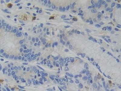 Immunohistochemistry (Formalin/PFA-fixed paraffin-embedded sections) - Anti-Glucocorticoid Receptor beta antibody (ab233165)