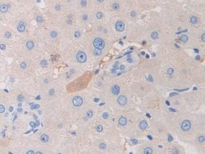 Immunohistochemistry (Formalin/PFA-fixed paraffin-embedded sections) - Anti-PZP antibody (ab233166)
