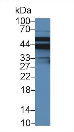 Western blot - Anti-NHERF-2/SIP-1 antibody (ab233167)