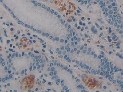 Immunohistochemistry (Formalin/PFA-fixed paraffin-embedded sections) - Anti-STAT2 antibody (ab233177)