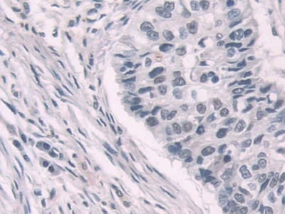 Immunohistochemistry (Formalin/PFA-fixed paraffin-embedded sections) - Anti-Transketolase antibody (ab233179)