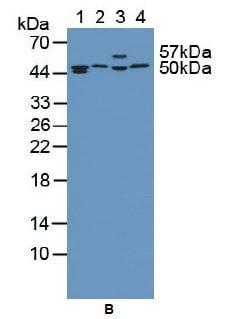 Western blot - Anti-Tbp7 antibody (ab233194)