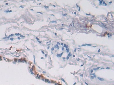Immunohistochemistry (Formalin/PFA-fixed paraffin-embedded sections) - Anti-P4HA2 antibody (ab233197)