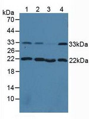 Western blot - Anti-Calponin 2 antibody (ab233204)