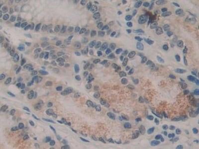 Immunohistochemistry (Formalin/PFA-fixed paraffin-embedded sections) - Anti-SQSTM1 / p62 antibody (ab233207)