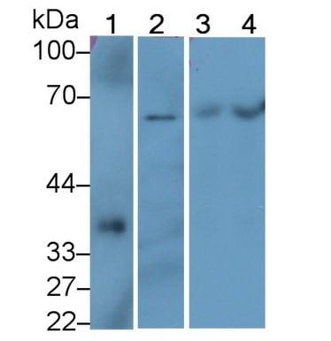 Western blot - Anti-SQSTM1 / p62 antibody (ab233207)