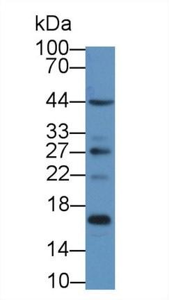 Western blot - Anti-S100A16 antibody (ab233211)