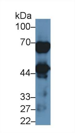 Western blot - Anti-NAGA antibody (ab233217)