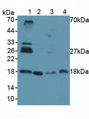 Western blot - Anti-UBE2I / UBC9 antibody (ab233224)