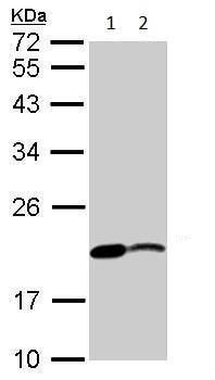 Western blot - Anti-Nme2b.1 antibody (ab233225)