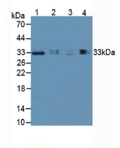 Western blot - Anti-TIM 3 antibody (ab233228)