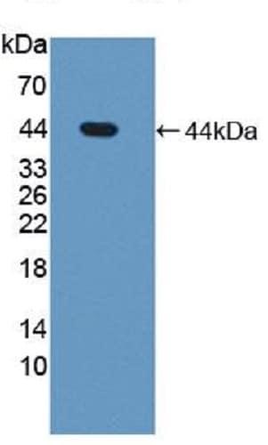 Western blot - Anti-Steroid sulfatase antibody (ab233233)