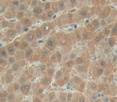 Immunohistochemistry (Formalin/PFA-fixed paraffin-embedded sections) - Anti-MYOM2 antibody (ab233263)