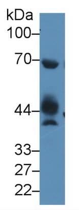 Western blot - Anti-NAGA antibody (ab233264)